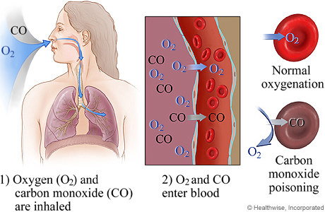 A diagram showing how Carbon Monoxide poisoning works